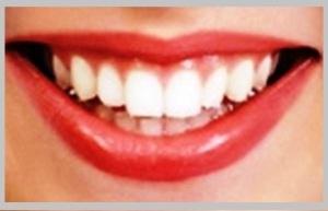 teeth-300x214
