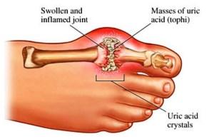 Gout diagram GWTH