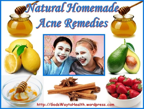 Home made acne remedies GWTH